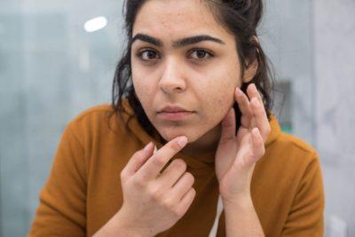 moça insegura observando espinhas no rosto